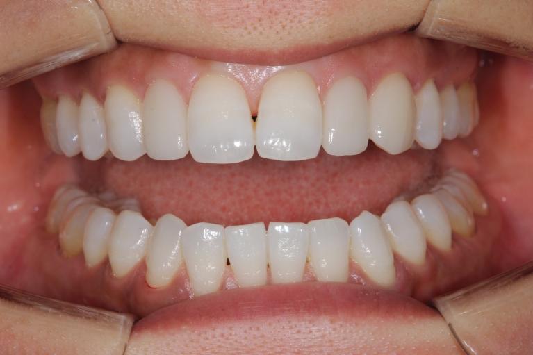 口腔内・お口全体のお写真の一例 01