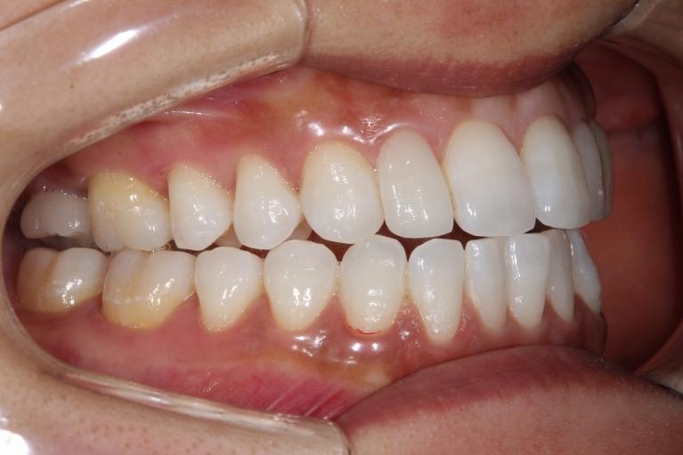 口腔内・お口全体のお写真の一例 02