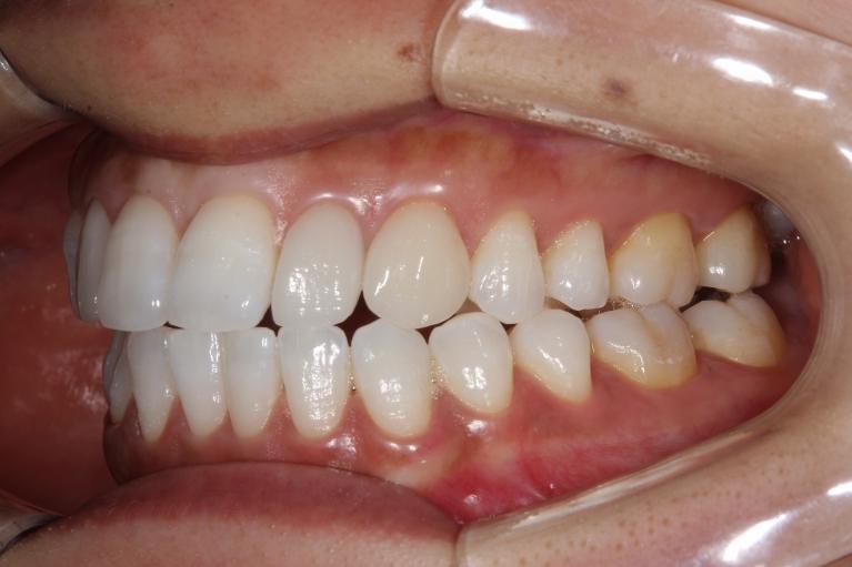 口腔内・お口全体のお写真の一例 03