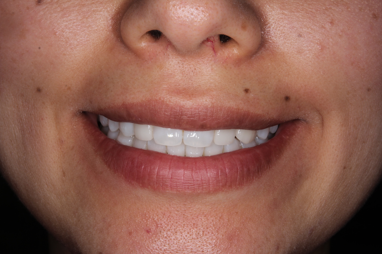 口腔内・お口全体のお写真の一例 04
